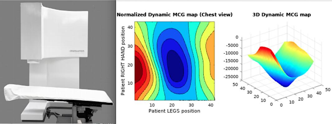 The Mesuron Inc. Avalon-H90 uses magnetometers to detect myocarditis in patients without any physical contact. It uses ventricular repolarization dynamics analysis software to look for abnormalities. The vendor said it is more specific than using ECG. It detects the multidimensional dynamics of the electrical activity caused by differences in functions of electrical action potential of normal heart tissues and abnormal ones with hypoxia.