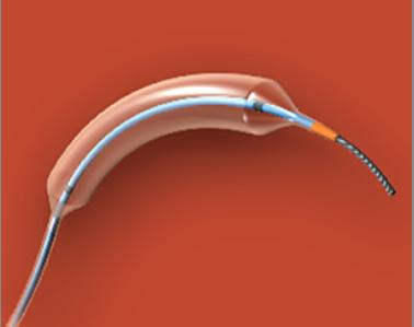 NC Trek RX Coronary Dilatation Catheter is part of an FDA Class I recall because it may not defalte.