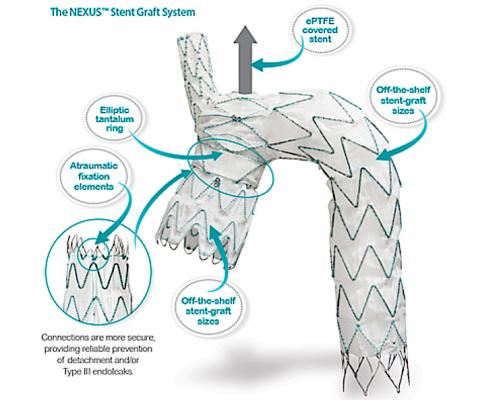 The Endospan Ltd. Nexus aortic arch stent graft is a CE mark–approved, off-the-shelf system for endovascular treatment of pathologies extending or involving the aortic arch.  #VIVA19 #VIVA2019