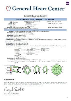 novacardio rsna 2013 cardiac pacs ecg management system novarad