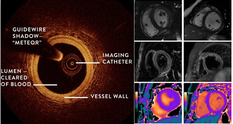 Women's Heart Attack Research Program (HARP) shows combining OCT and cardiac MRI can detect the underlying cause of heart attack in women who did not have blocked arteries