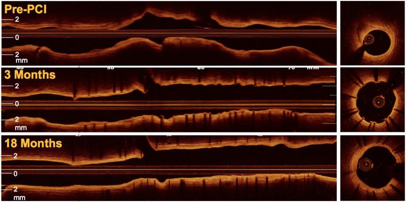 OCT, intravascular imaging, transform-OCT, stent evaluation