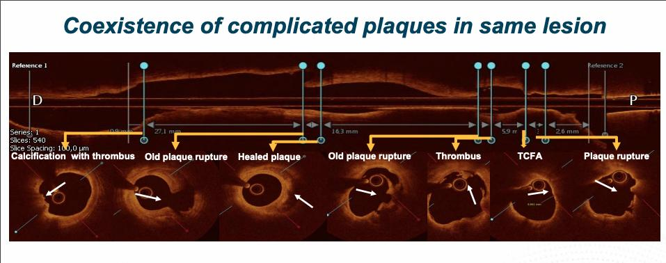 A longitudinal vessel assessment may demonstrate co-existence of multiple plaque morphologies on OCT, including superficial calcification with thrombus, healed plaque, plaque rupture, lipidic plaque with a thin capped fibrous atheroma (TCFA). #TCTconnect #TCT2020
