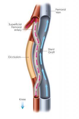 femoropoplitealer sidestep dissertation