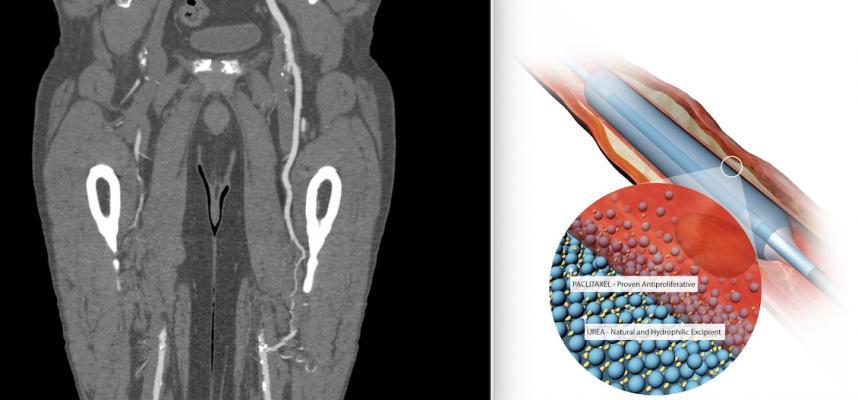 Two years ago a study raised concerns thatpaclitaxel-coated devices may cause increased mortality in peripheral artery disease patients. However, numerous studies now show there is no risk of increased mortality. The most recent study is the SAFE-PAD study presented at ACC.21.