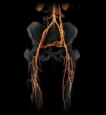 peripheral arterial disease, Atherectomy devices, ISET