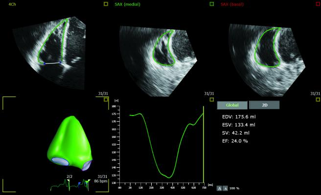 3D Auto RV application image courtesy of Philips Healthcare