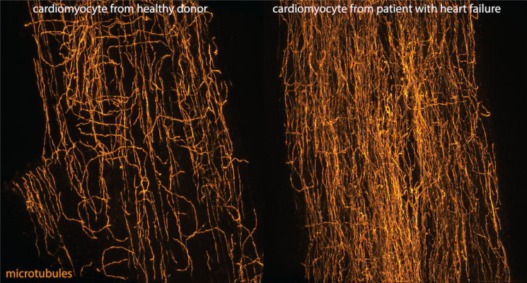 New Target for Treating Heart Failure Identified by Penn Medicine Researchers