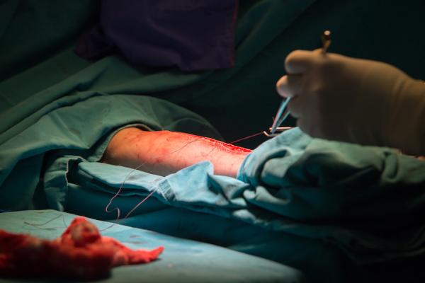 Closing access to the radial artery after harvesting a section of the artery for a coronary artery bypass graft (CABG). Photo by Getty Images. #ACC20 #ACC2020