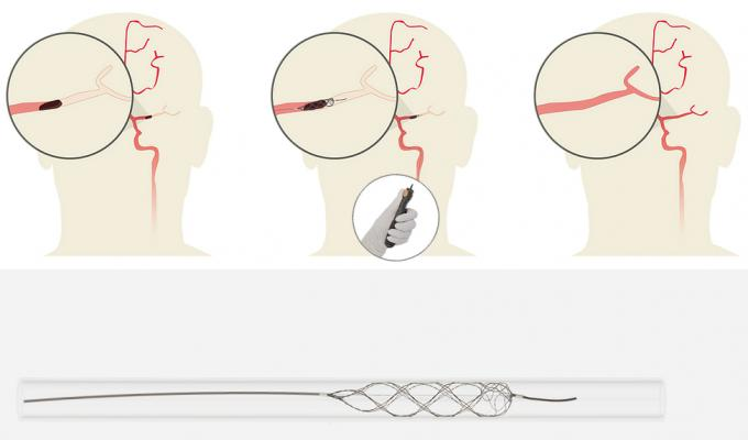 Rapid Medical's TigerTrieve stent-retriever neuro thrombectomy system.
