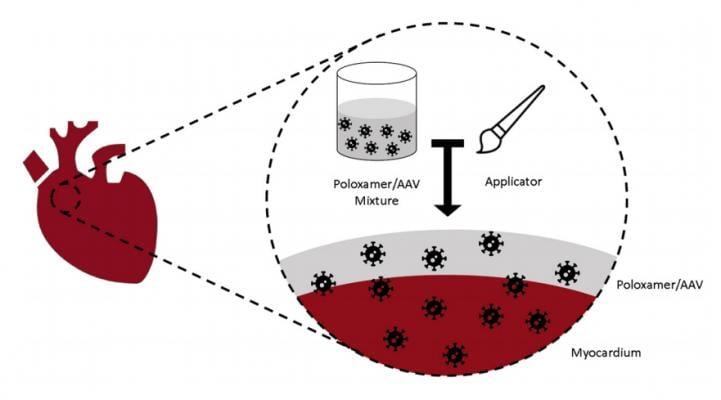 Rhythm Therapeutics gene, stem cell, therapy for atrial fibrillation.