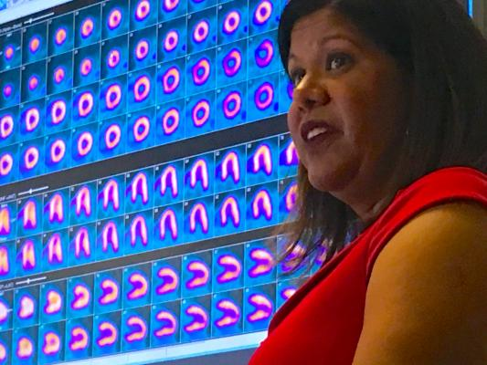 Rupa Sanghani, M.D., FASNC, associate professor, Rush Medical College, director of nuclear cardiology and stress laboratory, Rush University Medical Center, and associate director, Rush Heart Center for Women, explains how to create a high-volume cardiac positron emission tomography (PET) imaging program. She spoke on this topic at the 2019 meeting of the American Society Nuclear Cardiology (ASNC) and led a tour with attendees of the PET-CT system at Rush, which was located close to the conference. #ASNC