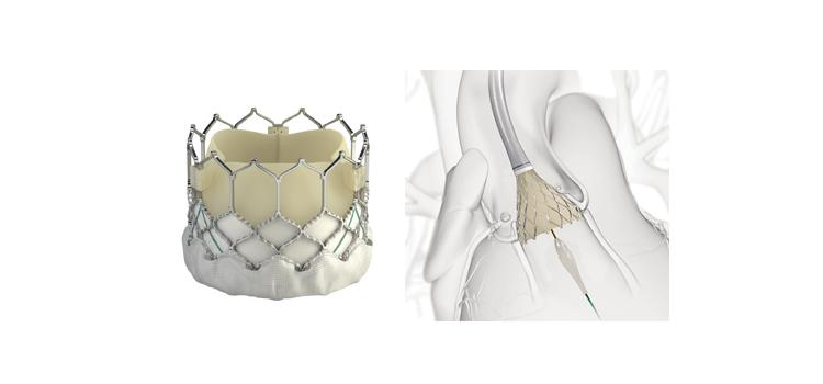 Local Anesthesia Safe and Effective for Intermediate- and High-Risk TAVR Patients