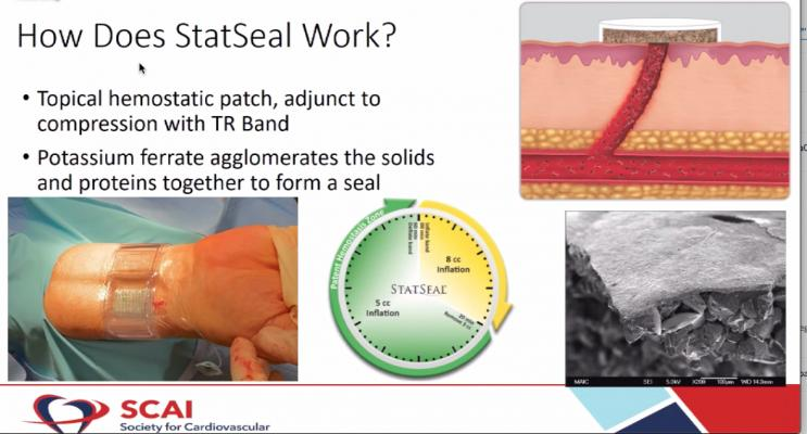 The STAT2 trial used a combination of the Biolife Statsealpotassium ferrate hemostatic patch and a Terumo TR Band to reduce radial access arteriotomy site hemostasis by 50 percent.