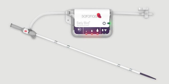 The Saranas Early Bird Bleed Monitoring System offers real-time detection and monitoring of transcatheter intervention vascular access site bleed complications.