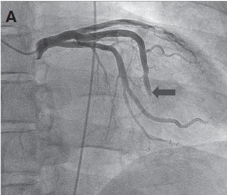Study Finds Effective Treatment for Coronary Slow Flow