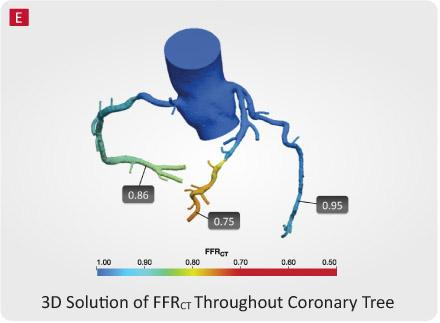 HeartFlow, CT-FFR, computed tomography fractional flow reserve, UH Case Medical