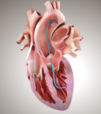 BioCardia Announces CardiAMP Heart Failure Pivotal Trial Continues with First Patient Randomized in COVID-19 Era
