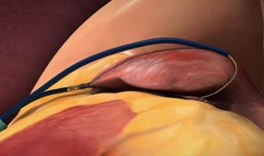 In the LAAOS III trial, surgeons could seal off the LAA during the open heart procedure using sutures, staples or approved closure devices. The image shows a SentraHeart lasso type LAA occluder about to seal off the LAA from the outside of the heart.  #ACC21 #ACC2021