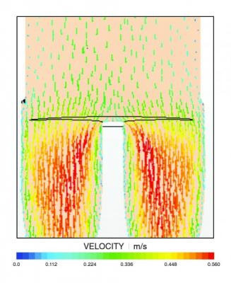 Stent graft, computational fluid dynamics, CFD, stent engineering