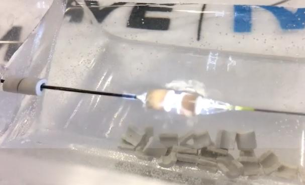 The Shockwave intravascular lithotripsy system produces a flash of light as it releases a sonic shockwave, as seen here as it is about to shatter a gypsum bead during a TCT 2019 demonstration at the vendor's booth. The technology combines a miniaturized lithotripsy system with a low-pressure balloon catheter to expand peripheral or coronary arteries without causing vessel trauma. Photo by Dave Fornell