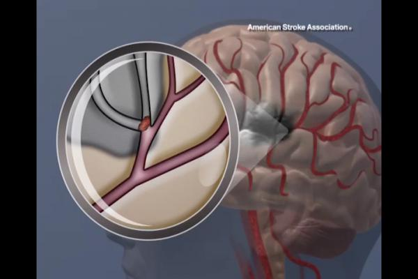 JAMA, intracranial arterial stenosis, balloon expandable stents, medication