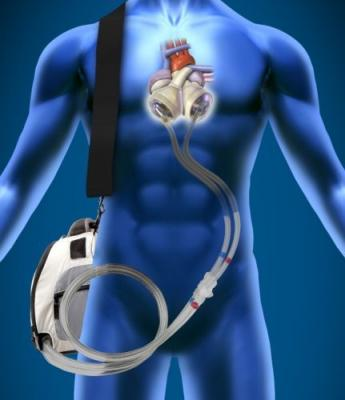 SynCardia Total Artificial Heart SynHall Valves FDA approval