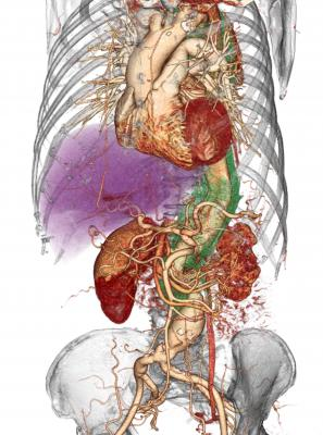 vRad Presents AI Model to Assess Probability of Aortic Dissection
