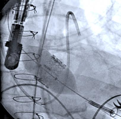 TAVR, TAVI, transcatheter aortic valve replacement, recommendations, Credentialing