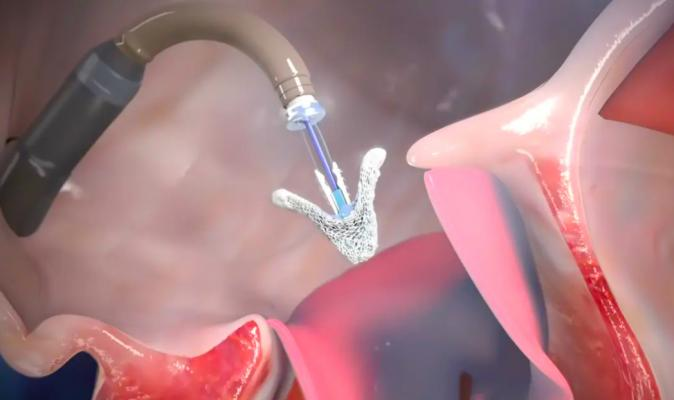 The new generation Abbott TriClip G4 device has gained European and Canadian approvals for transcatheter tricuspid valve repair (TTVR).
