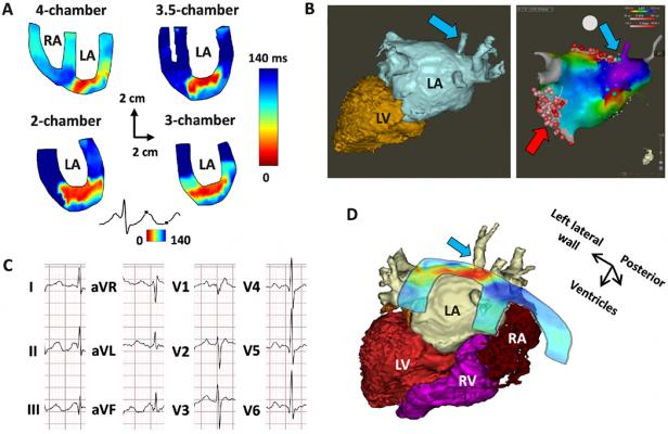 Top left, electromechanical wave imaging (EWI) isochrone renderings showing the activation points of the myocardium based on echocardiography axial strain measurements. Bottom right, EWI images overlaid on patient's CT scan of the heart.