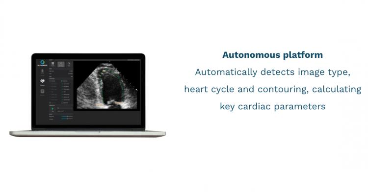 EchoGo uses AI to calculate cardiac ultrasound left ventricular ejection fraction (EF), the most frequently used measurement of heart function, left ventricular volumes (LV) and, for the first time for an AI application, automated cardiac strain.