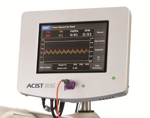 ACIST-FFR Study, enrollment complete, Navvus catheter, fractional flow reserve