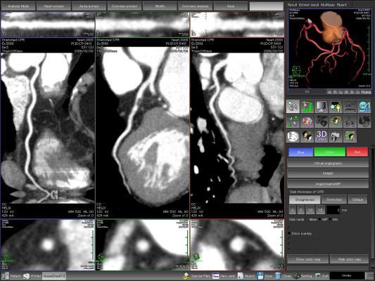 coronary CT angiography, CCTA, alcohol consumption, CAD, coronary artery disease, RSNA 2016