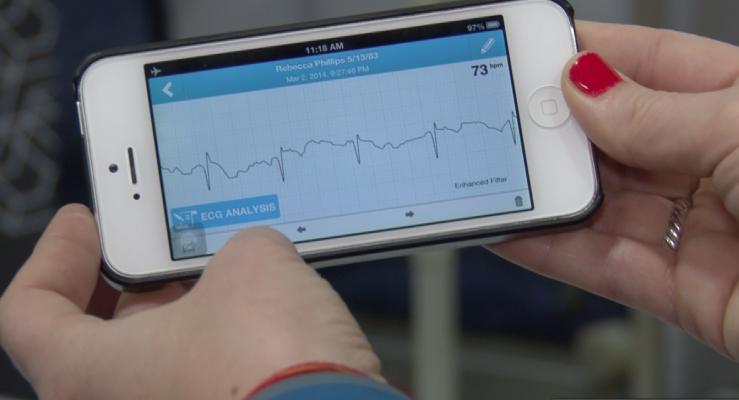AliveCor, Heart Monitor, atrial fibrillation, AF, ECG, Cleveland Clinic, study