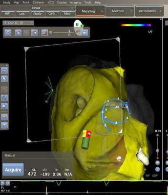 Biosense Webster, Confidense Module, Carto, multi-electrode mapping, 3-D