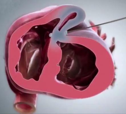 BioVentrix, Revivent TC Transcatheter Ventricular Enhancement System, reimbursement, Germany