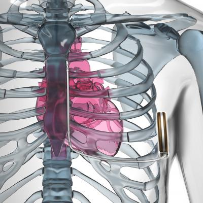 S-ICD, subcutaneous implantable cardioverter defibrillator, MRI safe ICD, Emblem