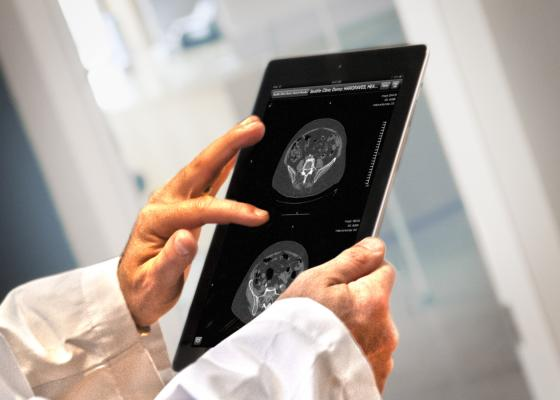 Calgary Scientific, Mass General Hospital, RadIQ, mobile radiology education tool, RSNA 2015