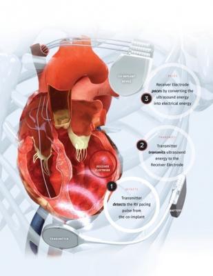 EBR Systems, FDA, WiSE Technology, Wireless Stimulation Endocardially, SOLVE-CRT study
