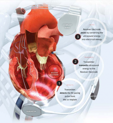WiSE CRT System is a wireless cardiac resynchonization therapy device with no lead wires
