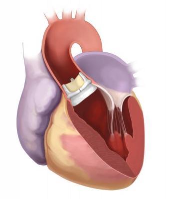 Northwestern Medicine, Edwards Lifesciences, Intuity Elite suturless aortic valve, first in Illinois
