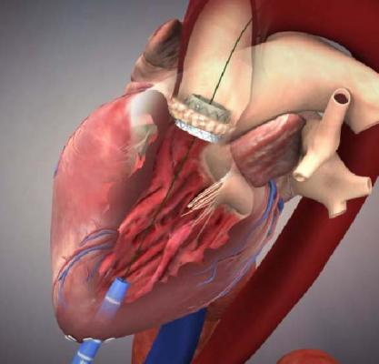 Edwards Sapien 3 Transcatheter Aortic Hear Valve Clinical Trial