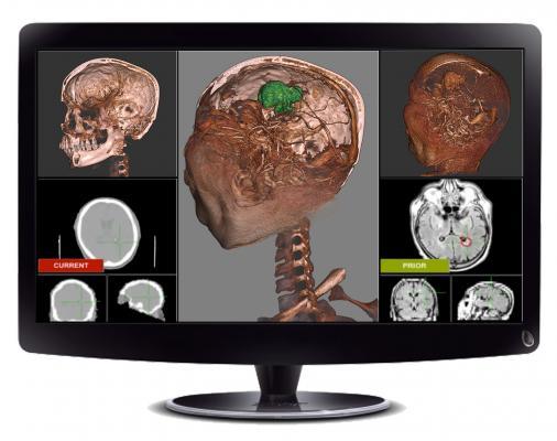 Fovia Medical Inc. Blackford Analysis Ltd. 3-D Registration