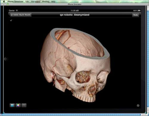 RSNA 2012 FujiFilm Medical Systems USA Synapse Mobility PACS