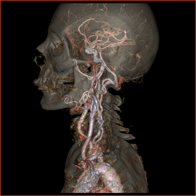 Revolution CT, computed tomography, 256 slice CT, GE Healthcare