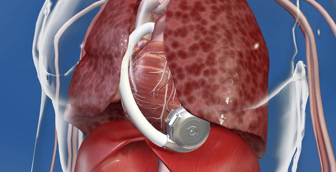 HeartWare, ENDURANCE2 trial, destination therapy, HVAS, HeartWare Ventricular Assist System