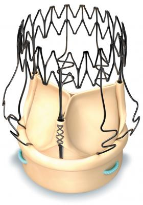 CMS Awards New Technology Add-on Payment for Perceval Sutureless Aortic Heart Valve