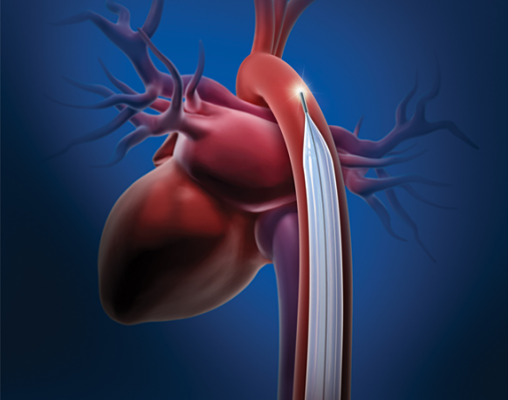 Intra-aortic balloon pump (IABP) might help Therapy Aids Cardiogenic Shock Patients