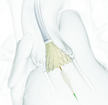Medtronic, Corevalve, Evolut R FORWARD Clinical Study, first patients enrolled